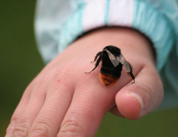 bee on child's hand
